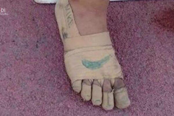 Non può permettersi le scarpe, se le costruisce con garza e gesso e conquista tre medaglie d'oro