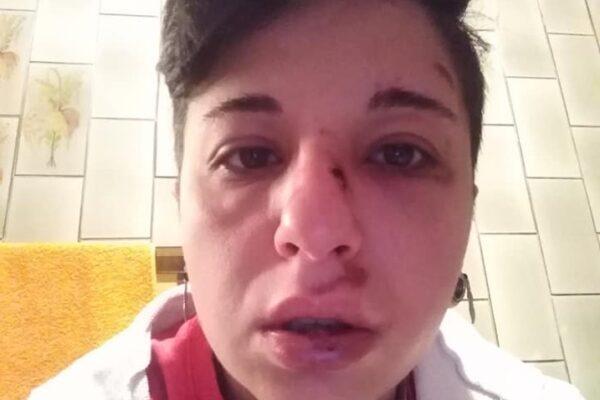 """Giulia aggredita perchè lesbica: """"Denuncio perchè non accada mai più"""""""