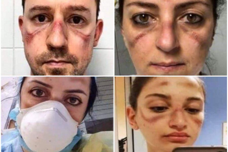 I segni delle mascherine lasciati sui volti dei sanitari dopo ore e ore di lavoro
