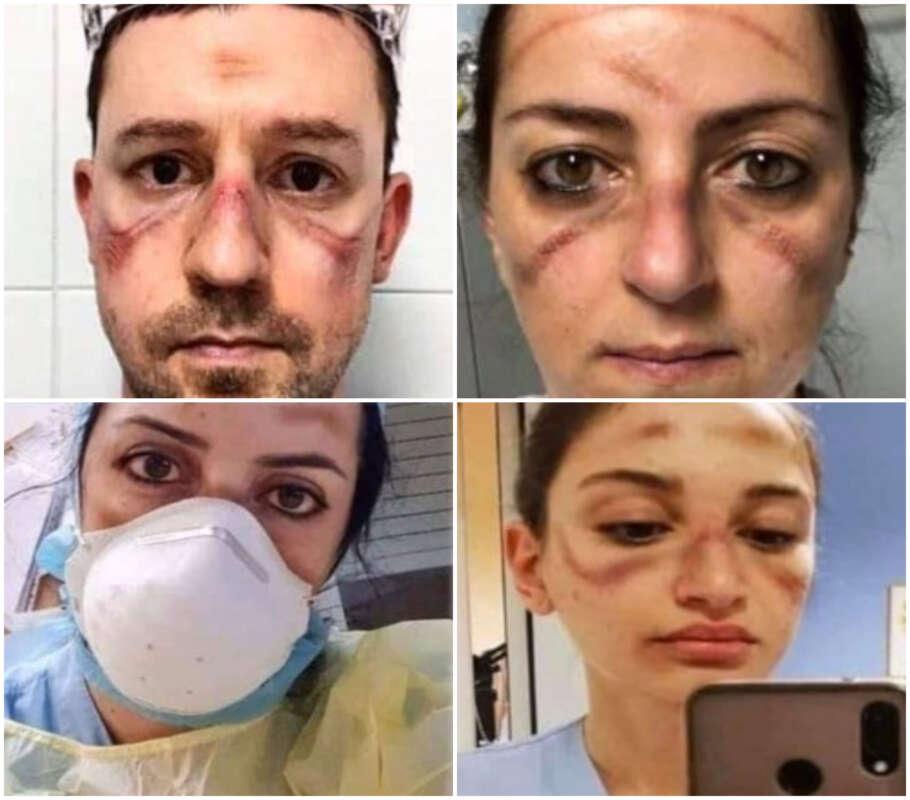 infermieri mascherine