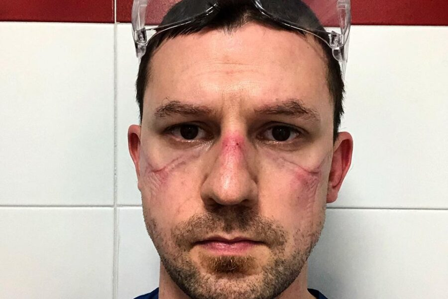 Il selfie dell'infermiere Nicola Sgarbi dopo 13 ore di turno