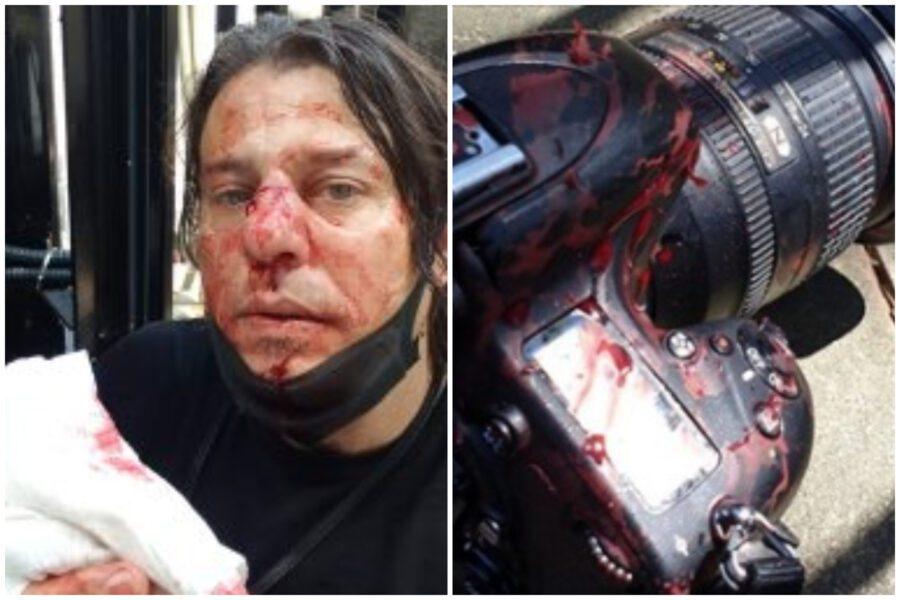 """Londra, fotoreporter italiano picchiato da """"un gruppo di estrema destra"""""""