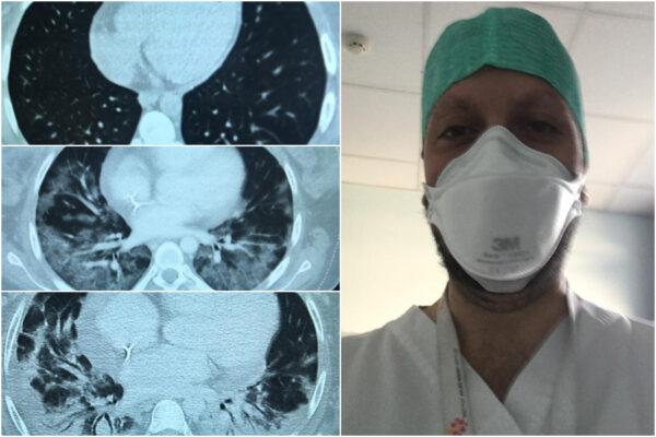 """Covid, l'evoluzione della polmonite in tre foto, il medico: """"In 20 giorni giovane paziente si sta degradando"""""""