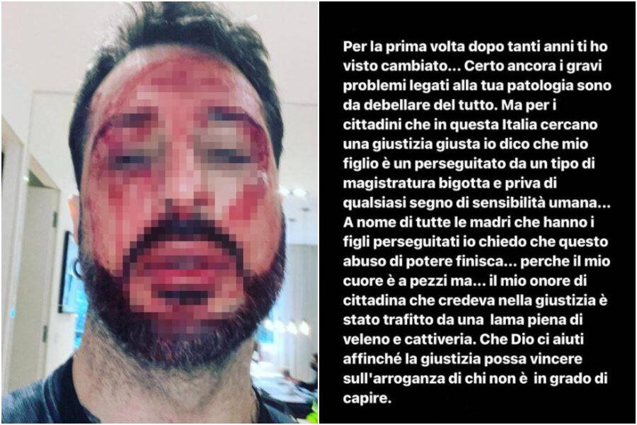 """Fabrizio Corona torna in carcere, sui social il volto pieno di sangue e la minaccia ai magistrati: """"Avete creato un mostro"""""""