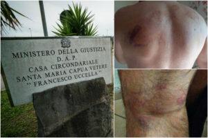 """Torture in carcere, l'orrore vissuto dai detenuti: """"Dopo mattanza per tre giorni senza cibo né cure"""""""